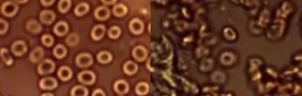 Arzt teilt schreckliche Bilder: So verändert der Covid-Impfstoff das Blut